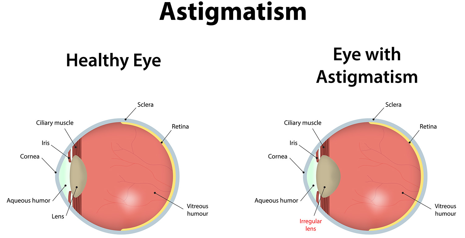 Normal vs Eye with Astigmatism